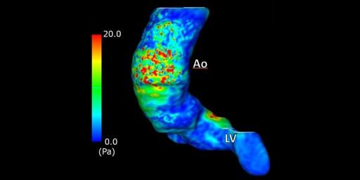 4D flow MRIで著明ならせん流を認めた大動脈弁狭窄症の一例