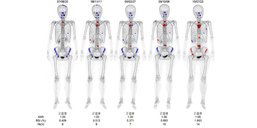 骨シンチグラフィによる骨転移評価の役割と意義