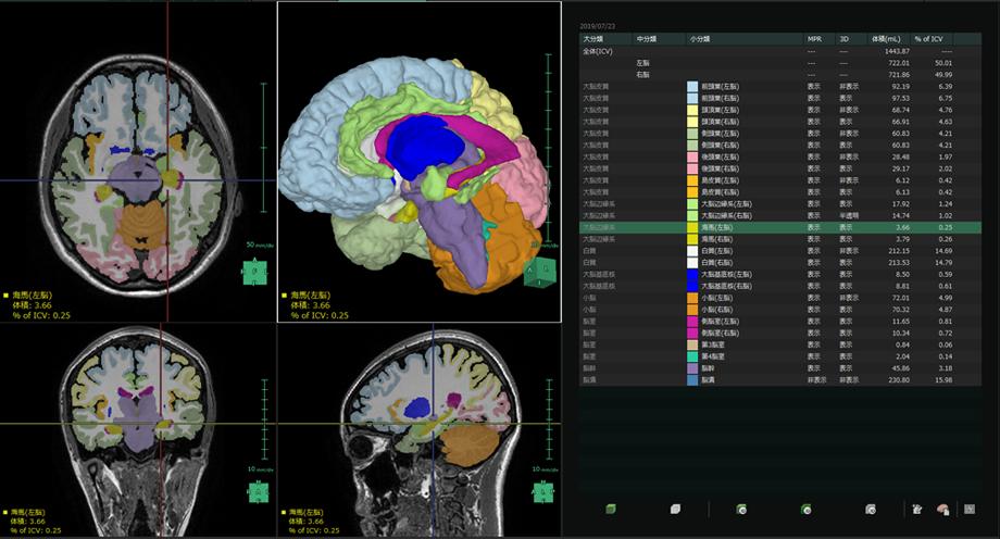 図3:分離した脳区域を可視化し、各領域の体積を定量化できる。