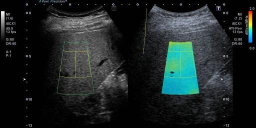 定量的な肝臓の画像診断