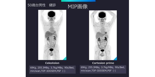 次世代デジタルPET-CT装置Cartesion Primeの使用経験とAI関連新技術